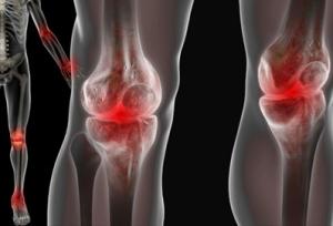 Obat Pengapuran Tulang Lutut
